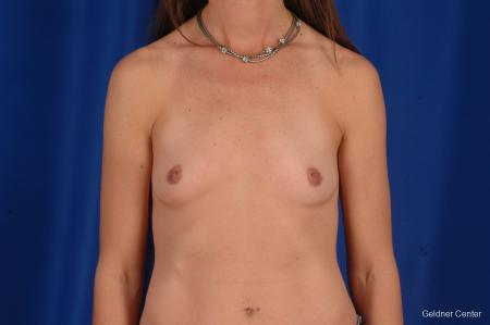 Chicago Breast Augmentation 2294 - Before Image 1