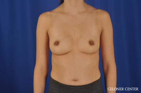 Chicago Breast Augmentation 8818 - Before Image 1