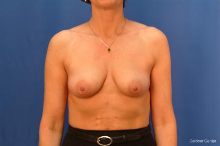 Breast Augmentation Streeterville, Chicago 2508 - Before Image 1