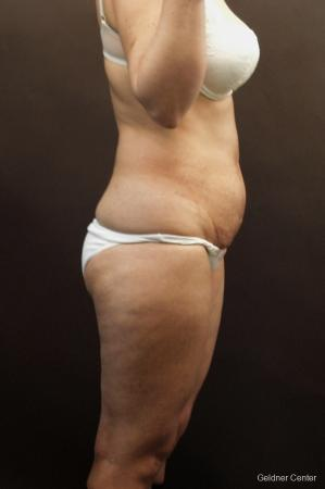 Tummy Tuck: Patient 8 - Before and After Image 3