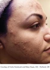 Chemical VI Peel before and after photos Lake Shore Dr, Chicago 2315 - Before