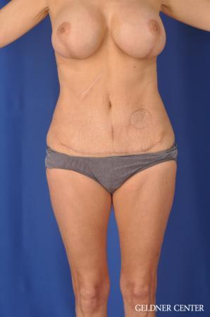Liposuction: Patient 37 - After Image 1