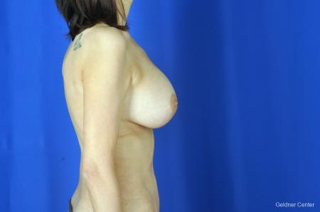 Breast Augmentation: Patient 5 - After Image 3