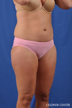 Liposuction: Patient 38 - Before Image 2
