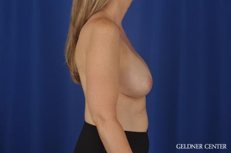 Breast Augmentation Streeterville, Chicago 8749 - Before Image 2