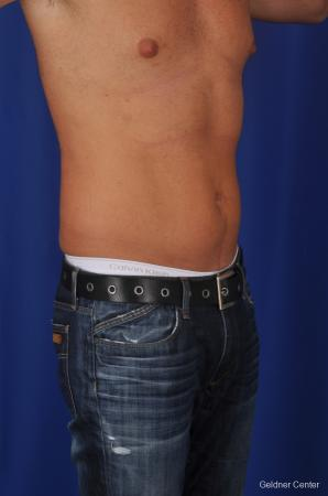 Liposuction For Men: Patient 1 - Before Image 2
