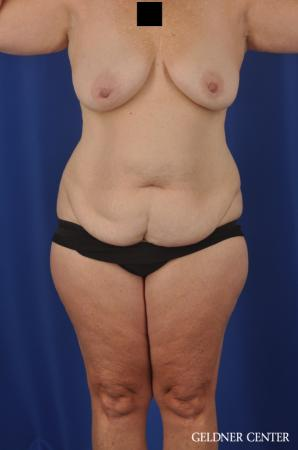 Abdominoplasty Patient 1 before and after photos - Before Image 1