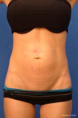 Vaser Liposuction with Abdominal Etching - Before Image