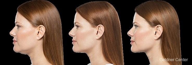 Kybella: Patient 1 - Before and After Image