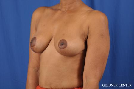 Breast Lift: Patient 38 - After Image 4