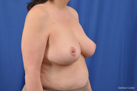 Breast Reduction: Patient 29 - After Image 2