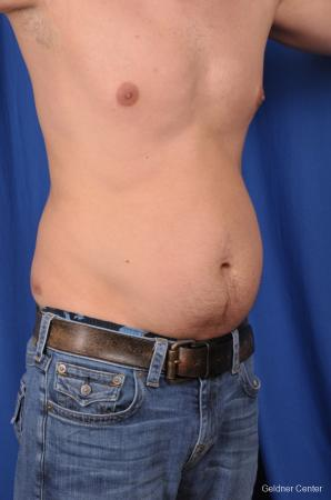 Liposuction For Men: Patient 5 - Before Image 2