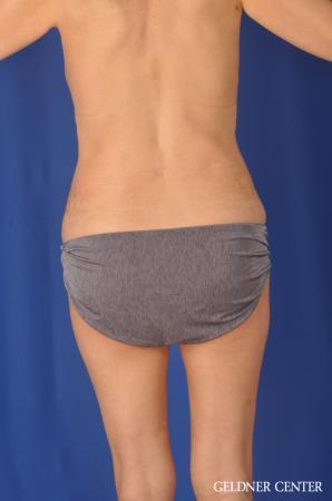 Liposuction: Patient 37 - After Image 4