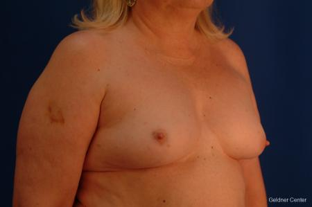 Chicago Breast Augmentation 2429 - Before Image 3