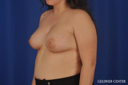 Breast Augmentation Hinsdale, Chicago 5466 -  After Image 4
