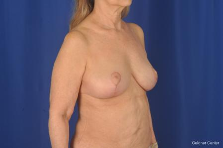 Breast Lift: Patient 17 - After Image 2