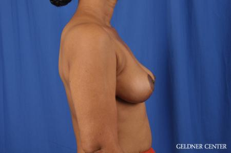Breast Lift: Patient 38 - After Image 2