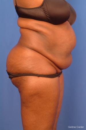 Liposuction: Patient 19 - Before Image 2