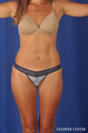 Liposuction: Patient 47 - After Image 1