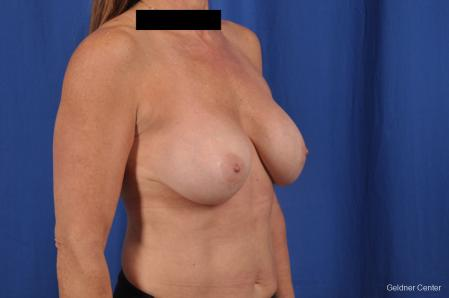 Breast Augmentation: Patient 153 - Before Image 3
