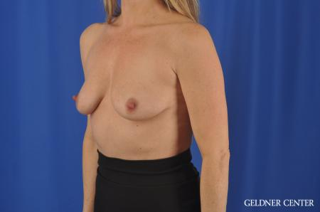 Breast Augmentation Hinsdale, Chicago 11861 - Before Image 4