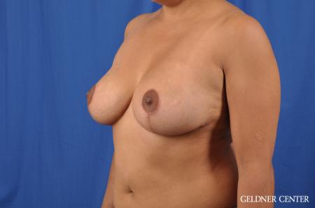 Breast Reduction: Patient 23 - After Image 4