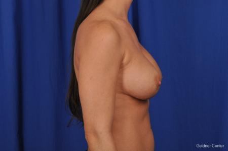 Breast Augmentation Streeterville, Chicago 2071 -  After Image 2