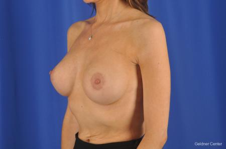 Breast Augmentation Lake Shore Dr, Chicago 2295 -  After Image 5