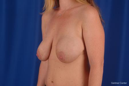 Complex Breast Augmentation Lake Shore Dr, Chicago 2290 - Before and After Image 3