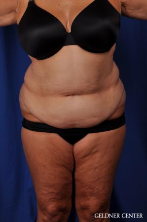 Lipoabdominoplasty: Patient 4 - Before Image