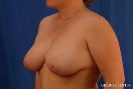 Breast Reduction: Patient 34 - Before and After Image 4