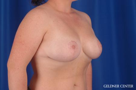 Breast Reduction: Patient 34 - After Image 2
