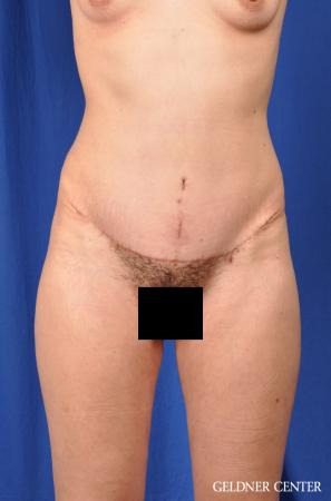 Tummy Tuck: Patient 32 - After Image 1