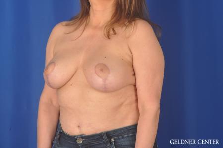 Liposuction: Patient 35 - After Image 4