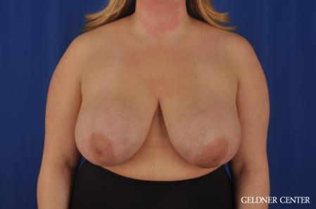 Breast Reduction: Patient 32 - Before Image 1
