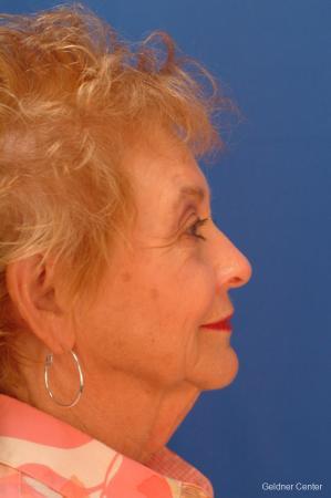 Neck Lift: Patient 5 - Before Image 2