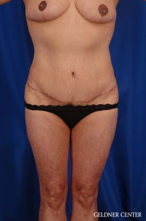 Vaser lipo patient 2629 before and after photos - After Image