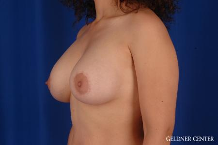 Breast Lift: Patient 28 - After Image 4