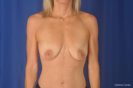 Breast Lift: Patient 20 - Before Image 1