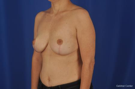 Chicago Breast Reduction 2068 -  After Image 3