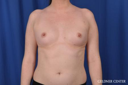 Breast Augmentation: Patient 135 - Before Image 1
