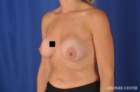 Complex Breast Augmentation Streeterville, Chicago 11971 - Before and After 4