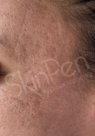 SkinPen®: Patient 2 - After 1