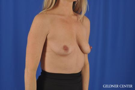 Breast Augmentation Hinsdale, Chicago 11861 - Before Image 2