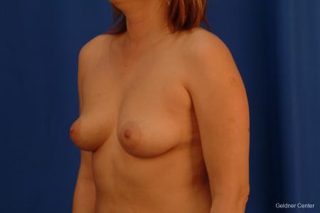 Chicago Breast Augmentation 2532 - Before and After Image 4