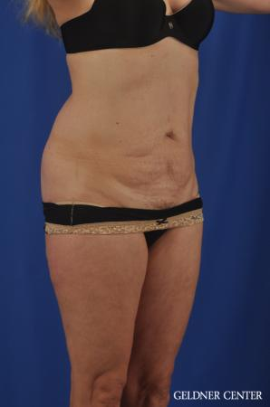 Chicago Abdominoplasty 11854 - Before Image 2