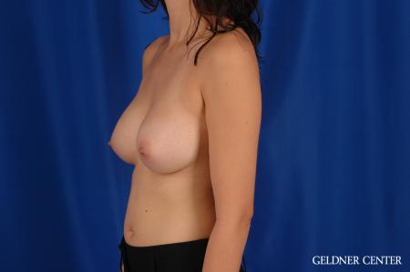 Breast Augmentation: Patient 177 - After Image 4