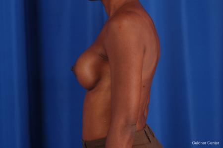 Chicago Breast Augmentation 2293 -  After Image 4