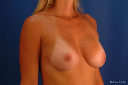 Complex Breast Augmentation Lake Shore Dr, Chicago 2419 -  After Image 2