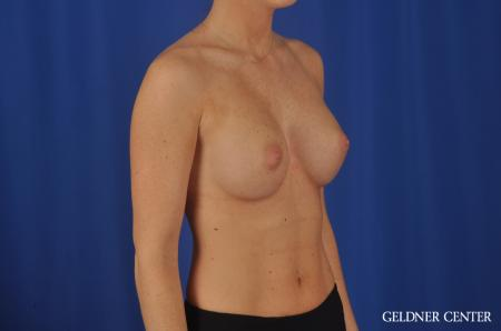 Chicago Breast Augmentation 4292 -  After 2